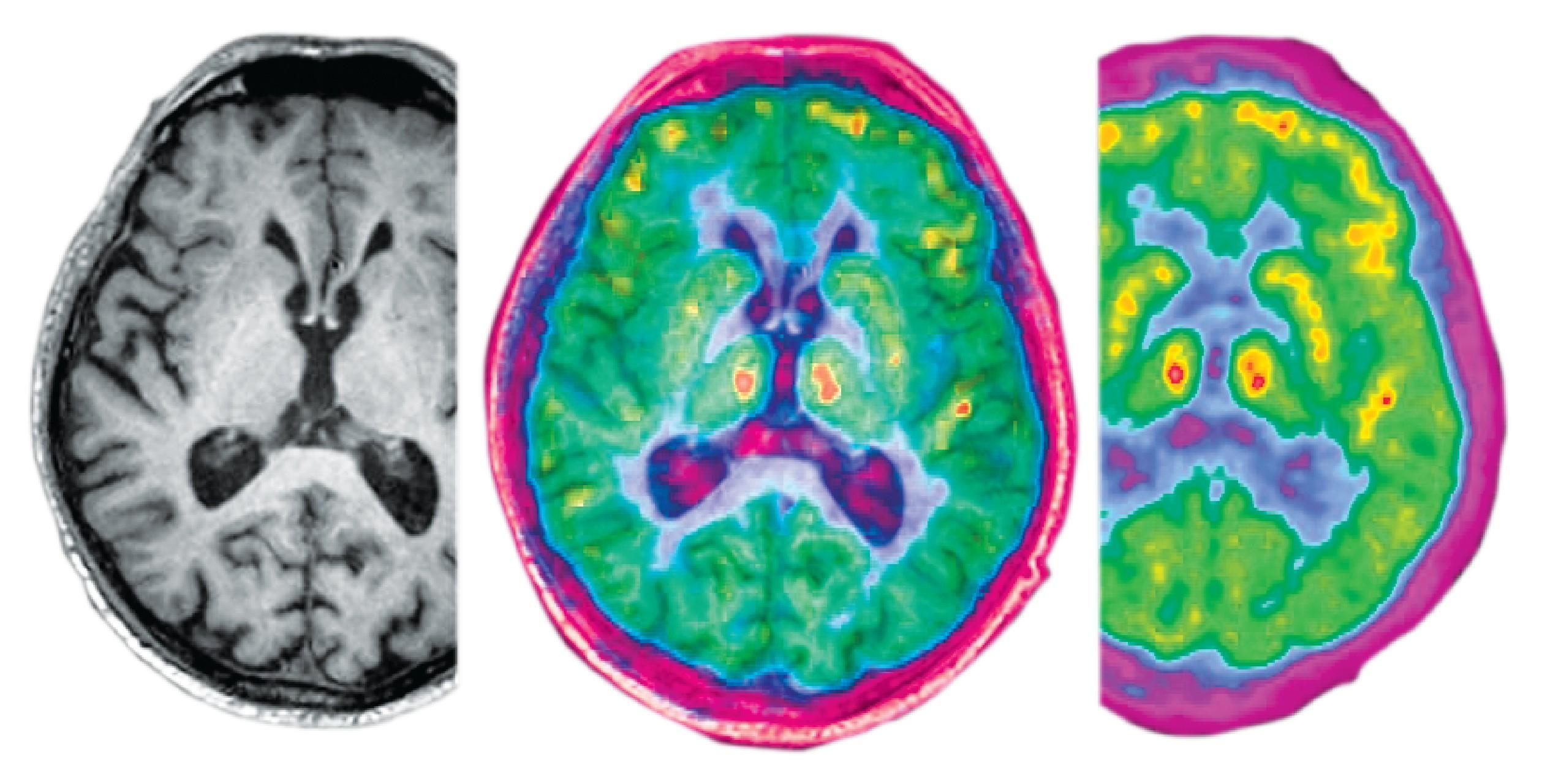 Header Image - Nuevas Tendencias de Investigación en Física Médica